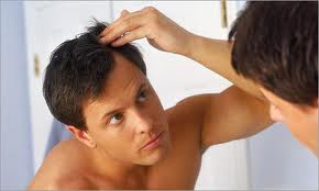 5 Baldness Myths
