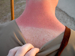 5 Natural Shields for Sunburn