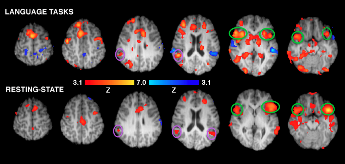 brain fmri scan - photo #20